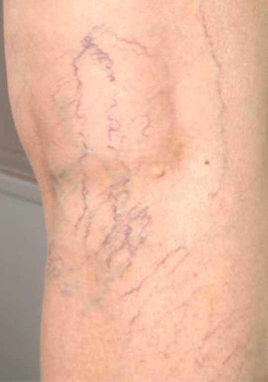 How do you get spider veins