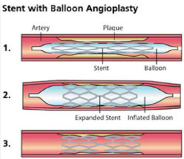 balloon angioplasty stenting vascular care centre